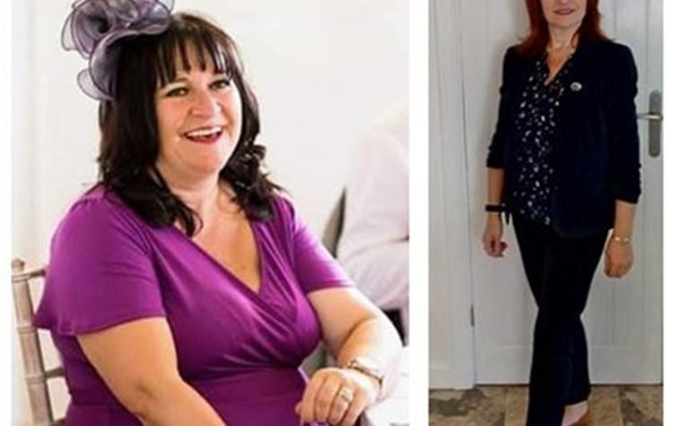 Emma Hannett's gastric sleeve surgery