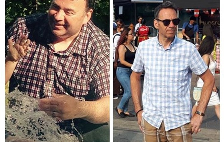 Phil Seymour's gastric sleeve operation